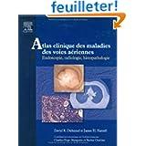 Atlas clinique des maladies des voies aériennes : Endoscopie, radiologie, histopathologie (1Cédérom) (Ancien prix...