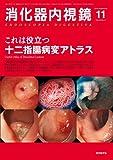 消化器内視鏡 第24巻11号 20 これは役立つ十二指腸病変アトラス (消化器内視鏡2012年11月号)