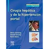Cirugía hepática y de la hipertensión portal