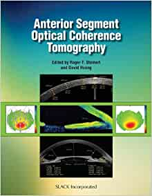 optical coherence tomography oct is a light based imaging modality