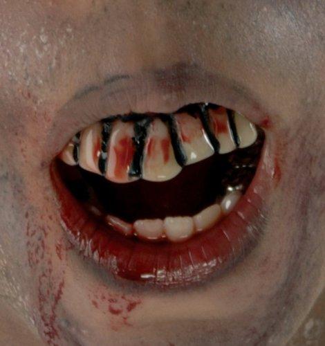 Stay Put Bloody Teeth - 1