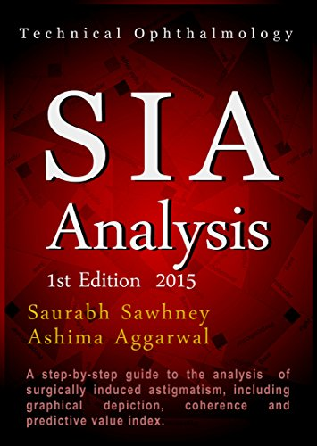 SIA Analysis: A step by step approach