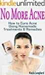 No More Acne: How to Cure Acne Using...