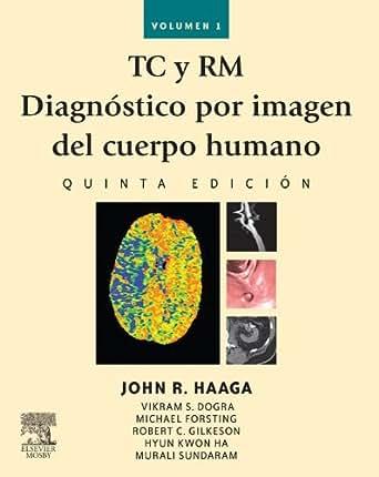 Amazon.com: TC y RM. Diagnóstico por imagen del cuerpo humano