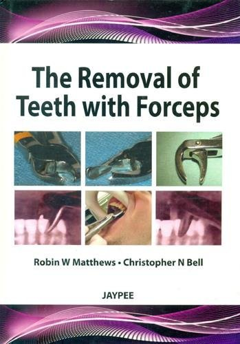 the-removal-of-teeth-with-forceps-by-robins-w-phd-matthews-2012-10-31