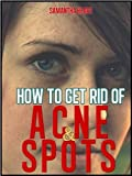 51nHECVSdNL. SL160 How To Get Rid Of Spots And Acne: What Are Spots & Acne And How Are They Caused?, Food Which Dont Help Spots, Calamansi, Home Remedies, Foods That Are Good For Spots and Acne Reviews