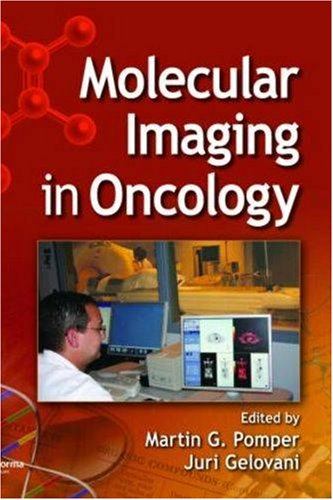 Molecular Imaging in Oncology | Free Ebook