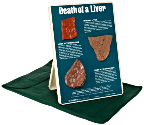 HEALTH EDCO W43114 Death of a Liver Easel 3D Display, 9