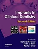 img - for Implants in Clinical Dentistry, Second Edition book / textbook / text book