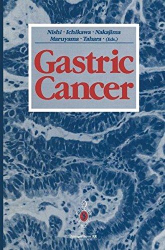 Gastric Cancer PDF