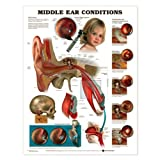 Middle Ear Conditions Anatomical Chart Laminated
