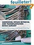 Abdominal Organ Retrieval and Transpl...