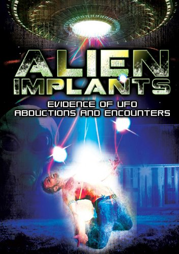Alien Implants: Evidence of UFO Abductions & Encou [DVD] [Import]