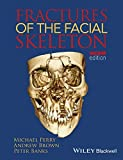 img - for Fractures of the Facial Skeleton book / textbook / text book