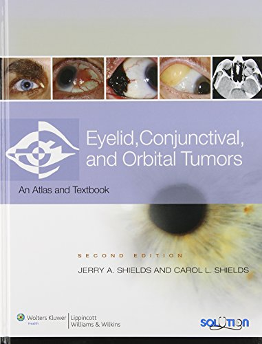 Eyelid, Conjunctival, and Orbital Tumors: An Atlas and Text