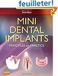 Mini Dental Implants: Principles and...