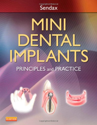 Mini Dental Implants: Principles and Practice, 1e