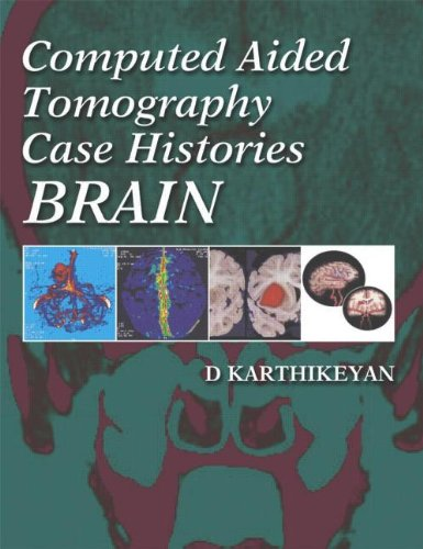 Computed Aided Tomography Case Histories: Brain
