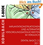 Implantatkonstruktionen und alternati...