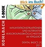 Implantatkonstruktionen und alternati...