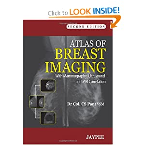 Atlas of Breast Imaging: With Mammography, Ultrasound and MRI Correlation
