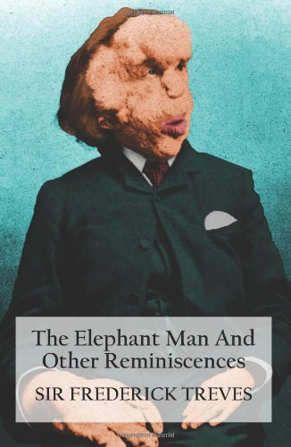 the darkness of human nature in animal farm by george orwell and the elephant man by frederick treve