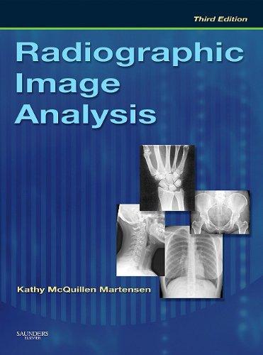 Radiographic Image Analysis, 3e