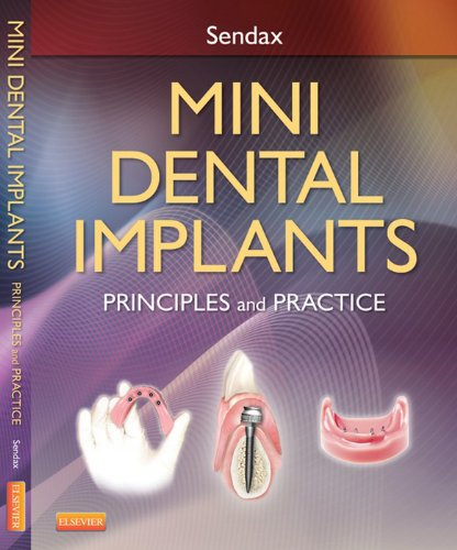 Mini Dental Implants- Elsevieron VitalSource: Principles and Practice
