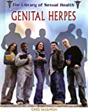 51qT0K9TgIL. SL160  Genital Herpes (The Library of Sexual Health)