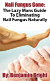 Nail Fungus Treatment:The Lazy Man Guide To Curing Nail Fungus Infections Naturally
