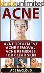 Acne: Acne Treatment: Acne Removal: A...