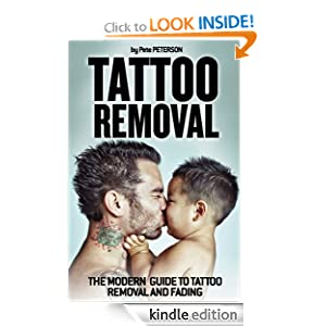 Tattoo Removal: The Modern Guide to Tattoo Removal and Fading Pete Peterson