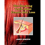 The Shocking Truth About Female Hair Loss: Secrets You Need to Know About Losing Hair So You Can Stop From Going Bald ~ James Dobovin