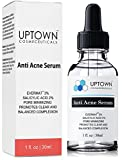 Anti Acne Serum for Men, Women and Teens From Uptown Cosmeceuticals Offers Cutting Edge Skin Care Product that helps to Reduce Acne & Minimize Pores, 30ML