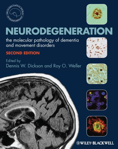 Buy Neurodegeneration Now!