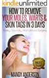 How To Remove Your Moles, Warts & Skin Tags in 3 Days: Easily, Naturally, And Without Surgery