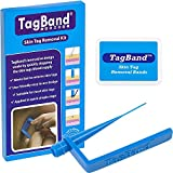 TagBand Skin Tag Removal Device