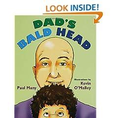 Dad's Bald Head