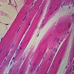 Muscle, Skeletal, Human, cross section & L.S., Microscope Slide