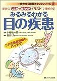 みるみるわかる目の疾患 (一歩先ゆく眼科スタッフシリーズ 2)