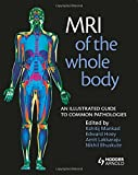 MRI of the Whole Body: An Illustrated Guide for Common Pathologies: An Illustrated Guide to Common Pathologies