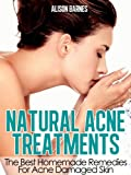 Natural Acne Treatments: Home Remedies For The Best Acne Treatment Skin Care Including Teenage Acne, Adult Acne, Acne Scars and Back Acne