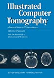 img - for Illustrated Computer Tomography: A Practical Guide to CT Interpretations book / textbook / text book