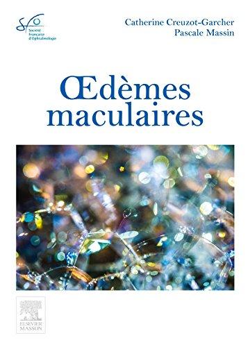Oedèmes maculaires: Rapport SFO 2016