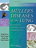 img - for Muller's Diseases of the Lung: Radiologic and Pathologic Correlations book / textbook / text book