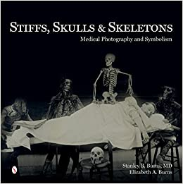 Medical Photography - Stiffs, Skulls & Skeletons: Medical Photography and Symbolism - Amazon.com: Stiffs, Skulls & Skeletons: Medical Photography and Symbolism (  9780764347467): Stanley B. Burns, Elizabeth A. Burns: Books.