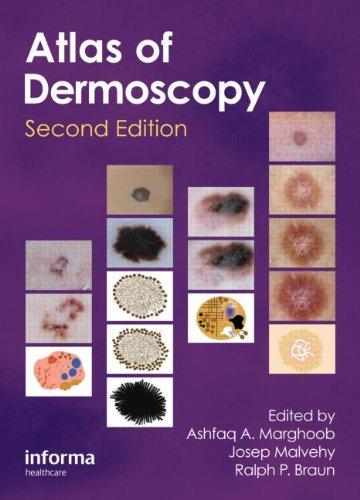 An Atlas Of Dermoscopy, Second Edition