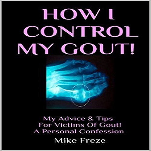 How I Control My Gout!: My Advice & Tips for Victims of Gout - A Personal Confession