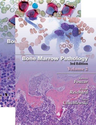 Finnaar september 2011 by kathryn foucar bone marrow pathology third edition 2 vol set fandeluxe Choice Image