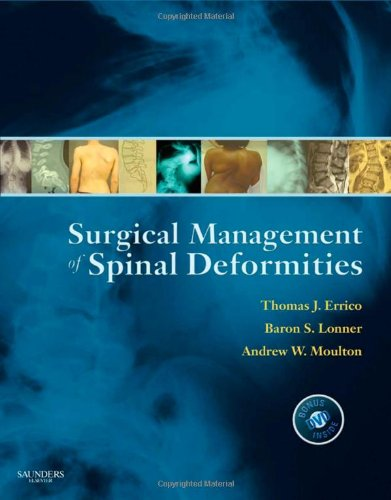 Surgical Management Of Spinal Deformities, 1E (Expert Consult Title: Online + Print)